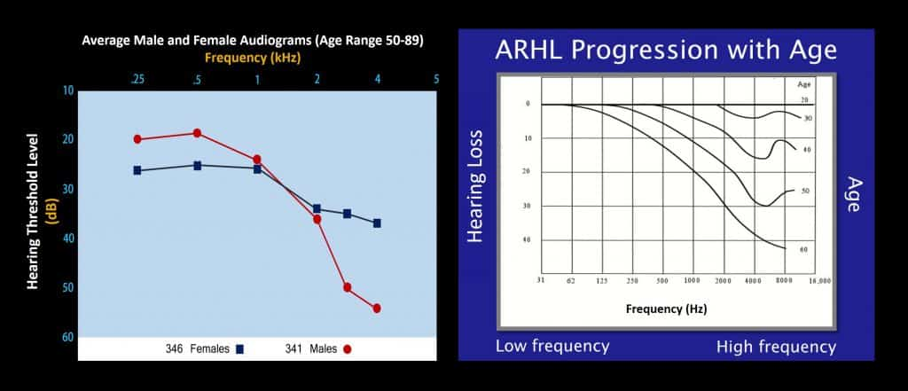 age related hearing loss progression audiograms